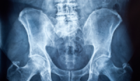 The calcium connection: why hip and knee replacements might increase the risk of heart attack